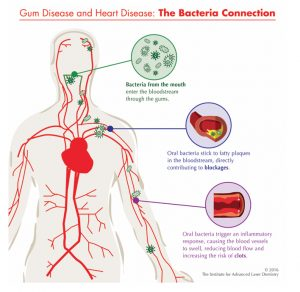 New research links gum disease and heart disease