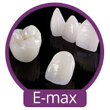 cosmetic dentistry - e.max crowns