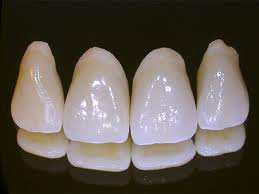 cosmetic dentistry - porcelain crowns
